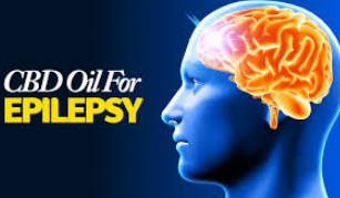 CBD Oil and Epilepsy – Benefits, Wellness, Ways to Subside